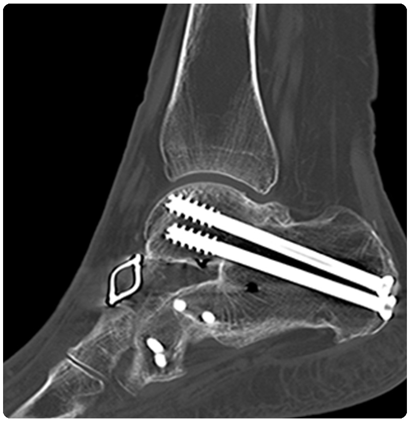 ct scan fracture