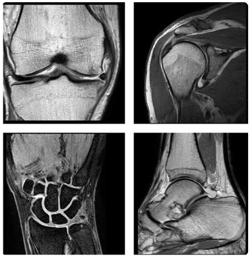 Musculo-Skeletal Imaging